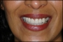 Dental Holiday Hungary
