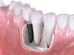 Dental excellence and dental implant london