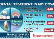 Dental tourism in Moldova (free accommodation*)