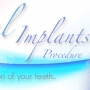 8 Recommended Places for Dental Implants in Turkey