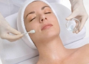 Chemical peels for acne scars and large pores