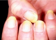 What is Fungus toenail?