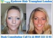 Eyebrow Transplant, Eyebrow Hair Transplant London | Rejuvenate Hair Clinics