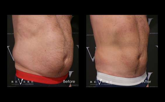 Highly effective fat freezing and coolsculpting in london