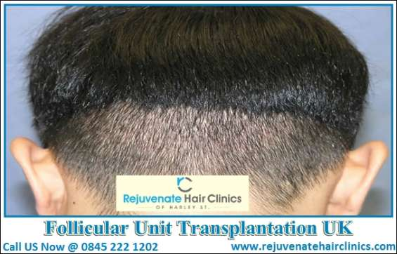 Switch to affordable follicular unit transplantation uk agency for healthy hairs