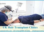 Affordable Hair Transplant Cost In London - rejuvenate hair clinics